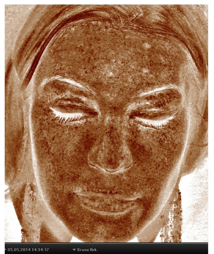 3D Skin scanning brune flekker 2