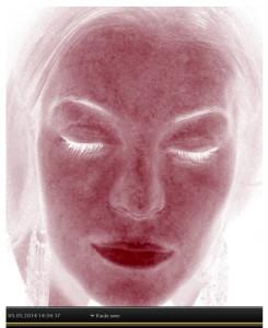 3D Skin scanning rode omrader 2