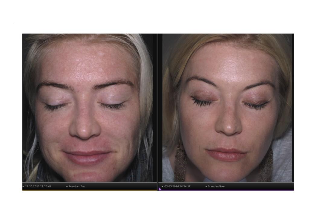 Skin scanning