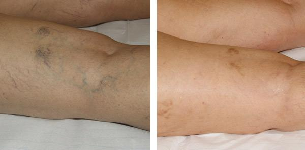 pigmenter i huden
