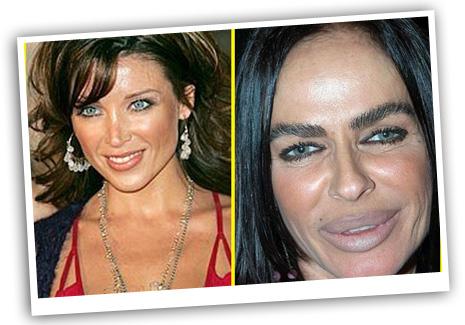 Michaela-Romanini-plasrtic-surgery