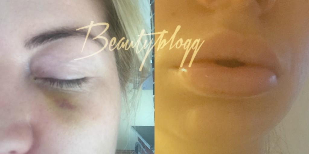 bivirkning restylane botox