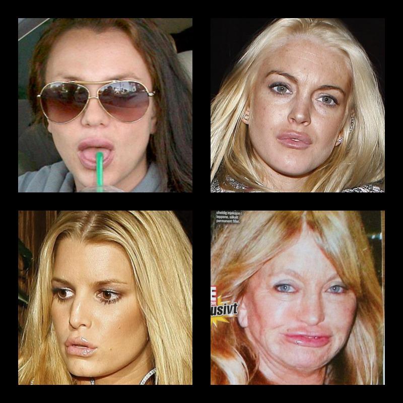 fjerne bamerker i ansiktet