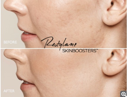 Restylane skinboosters Akne