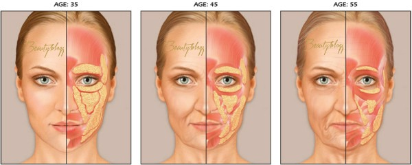 aging botox
